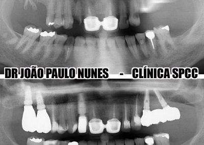 Dr. João Nunes_5