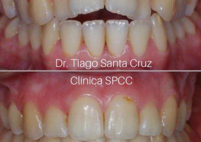 Dr. Tiago Santa Cruz_1