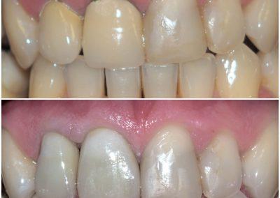 Substituição de coroas antigas nos dentes 12 e 11