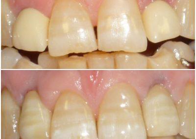 Substituição de coroas antigas nos dentes 12 e 22